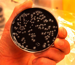 Legionellabakterier
